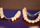 Auch dritte Zähne müssen gründlich gebürstet werden