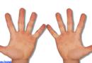 Links- oder Rechtshänder? – Arbeitsfelder der Ergotherapie