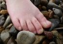 Kurios:  Schleudertrauma wegen Verletzung der Zehen bewiesen?