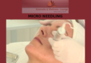 Micro Needling in der Wellness Lounge