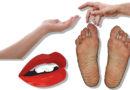 Hand-Fuß-Mund-Krankheit: Eine Woche daheim bleiben
