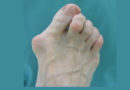 So stärken Sie Ihre Fußmuskeln