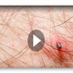 Riesen-Zecke schlägt zu: Erster Deutscher an Fleckfieber erkrankt