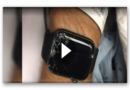 Apple Watch rettet ihm sein Leben: Mountainbiker wacht erst wieder im Krankenwagen auf
