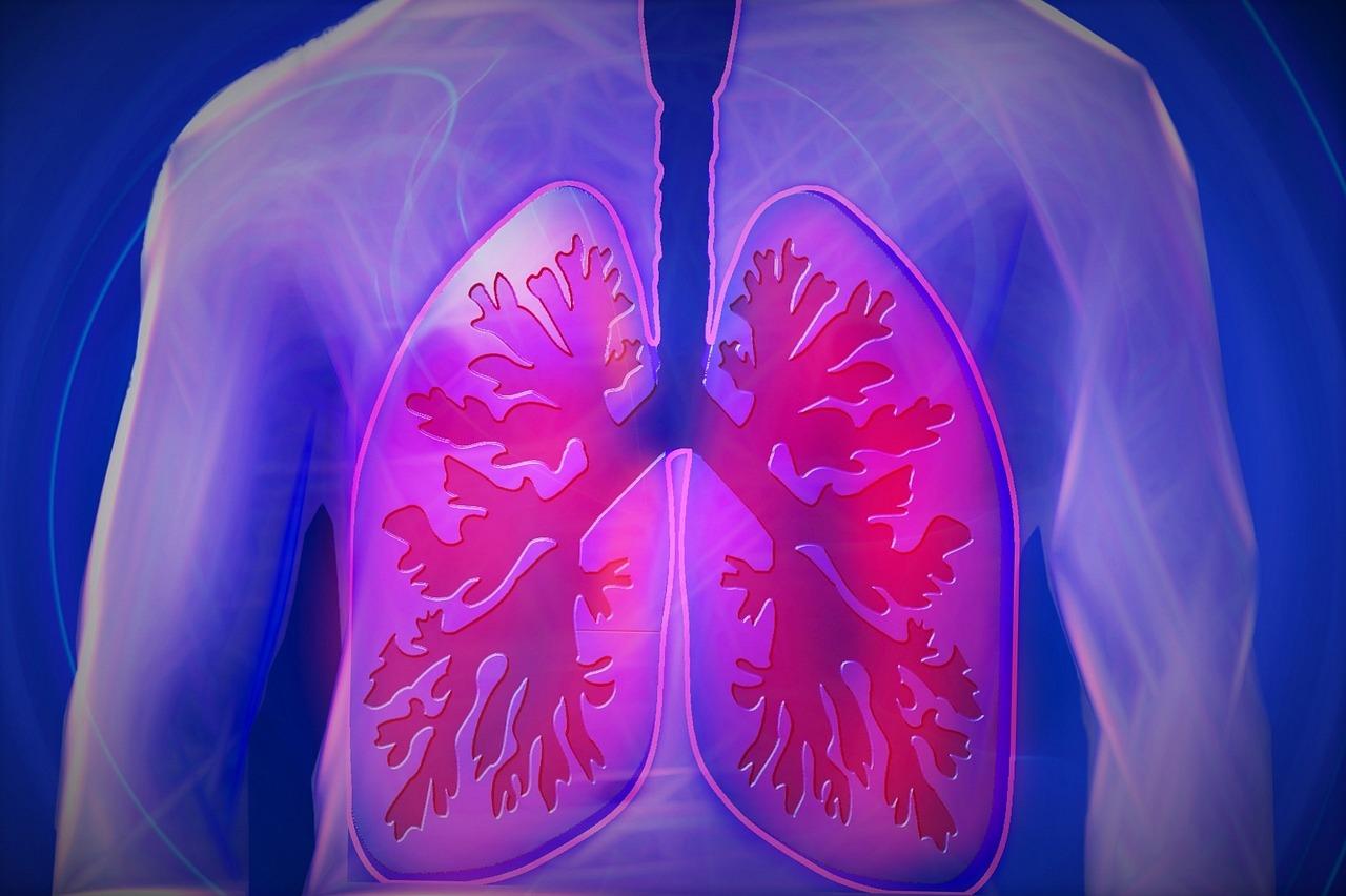Hohe Evidenz für ambulante Behandlung von Lungenembolien