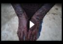 """""""Menschliche Schlange"""": Dieser Junge häutet sich alle 6 Wochen"""