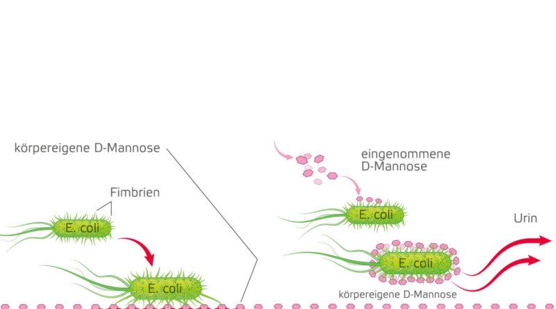 Endlosschleife Blasenentzündung: Wege aus dem Teufelskreis der häufig wiederkehrenden Infektion